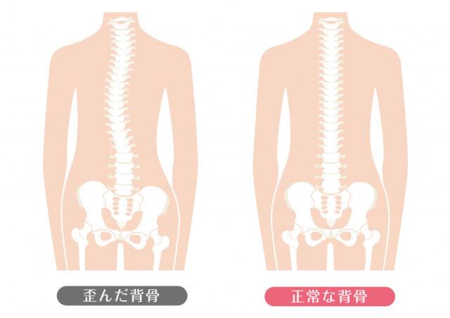 背骨の歪み